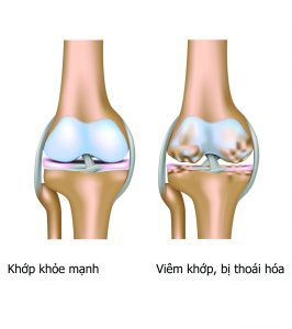 hình ảnh bệnh lý liên quan đến xương khớp