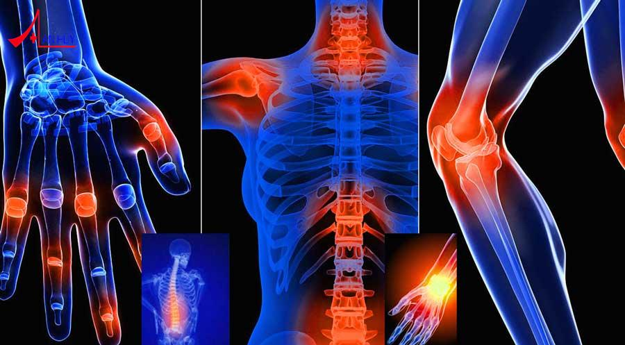 Bệnh xương khớp ở các vị trí trên cơ thể