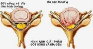 bai-thuoc-tri-thoat-vi-dia-dem