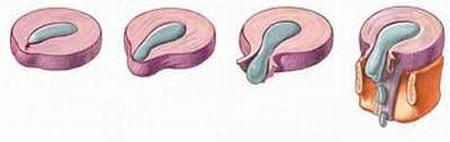 Bệnh thoát vị đĩa đệm – Tiến triển và dự phòng bệnh thoát vị đĩa đệm
