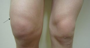 Điều trị tràn dịch khớp gối bằng phương pháp Chiropractic kết hợp Laser
