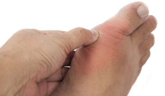 Viêm khớp Gout 3