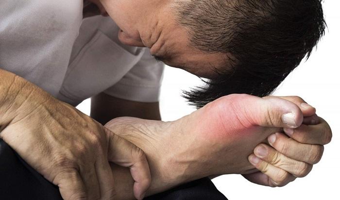 Viêm khớp Gout 1