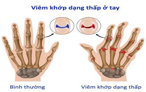 benh-thap-khop-la-benh-gi-104437