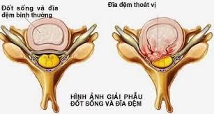 chua-thoat-vi-dia-dem-bang-bam-huyet-1490
